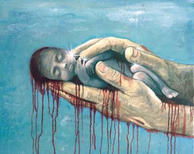 20091008230309-aborto.jpg